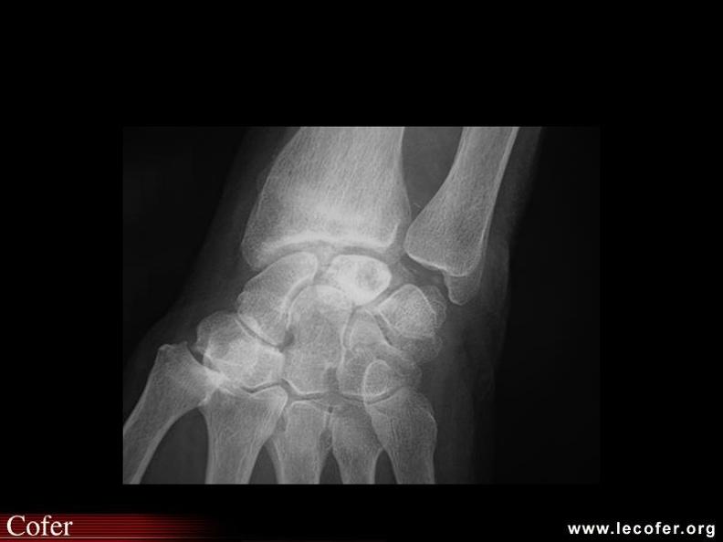 Chondrocalcinose articulaire du poignet | Diapothèque du COFER